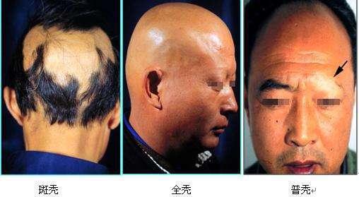 如何正确区分脱发的种类